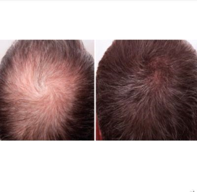 The 10 most common causes of hair loss and the BestTreatments
